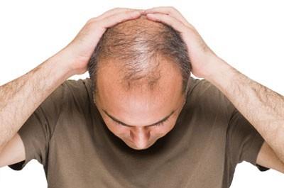 Bästa hårtransplantation i Sverige