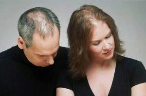 Håravfall: PRP behandling med FUE hårtransplantation