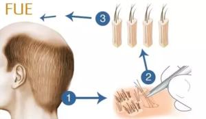 Hårtransplantation och kirurgi
