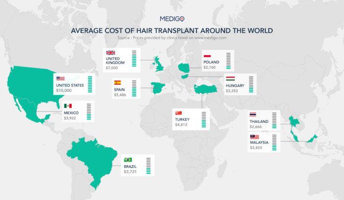 Bästa hårtransplantation Sverige