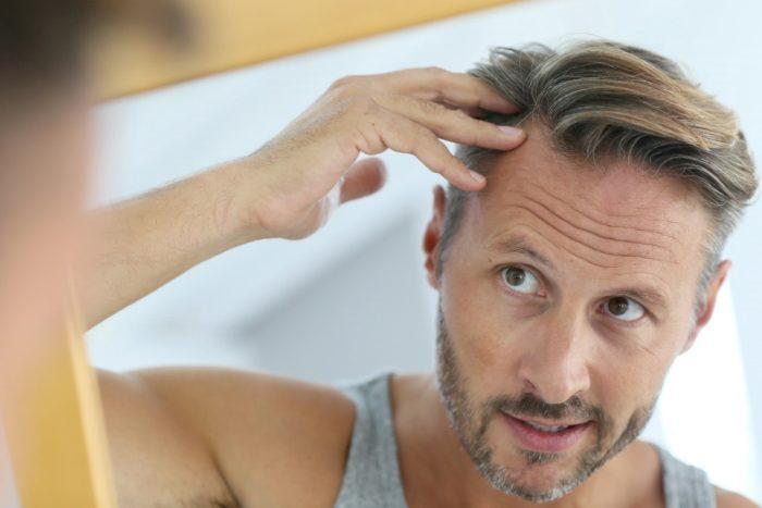 Fem saker att tänka på innan du gör en hårtransplantation