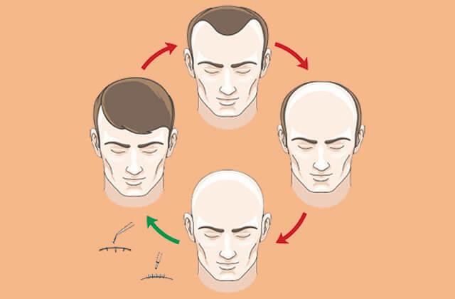 Hemmeligheder for hårtransplantationer